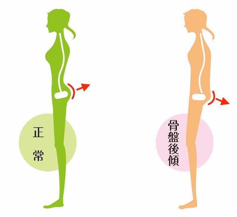 骨盤の傾きを表した図。